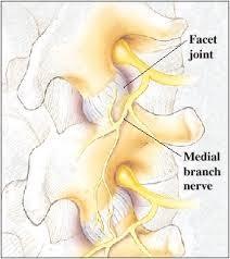 Faset eklem blokajı – faset medial dal blokajı ve rft